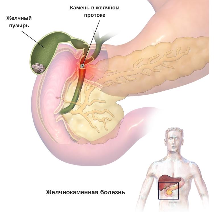 причины повышения билирубина у мужчин