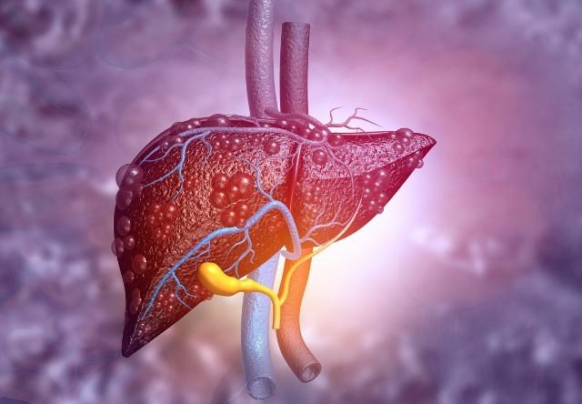 повышения билирубина и холестерина в крови