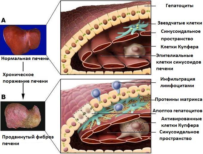 гепатит повреждение печени