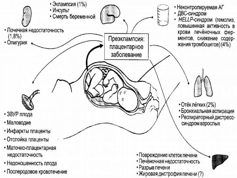 преэклампсия патогенез и симптомы