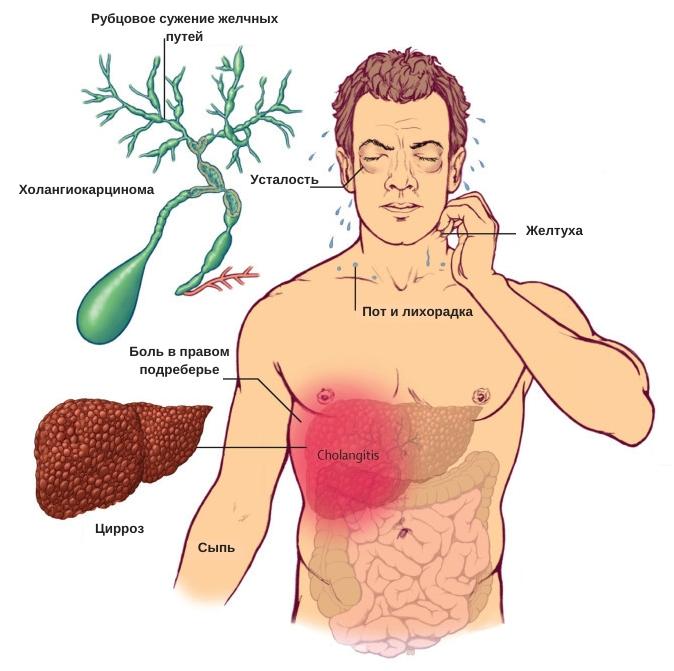 желтухи причины и симптомы