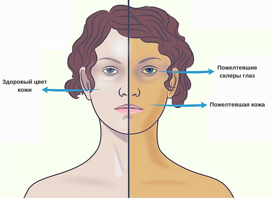 анализы на билирубин у женщин