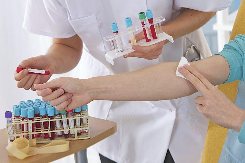 как правильно сдавать кровь на билирубин