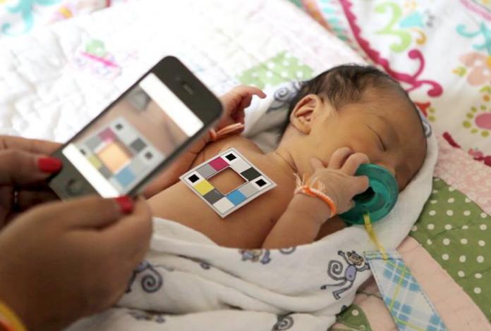 анализ на билирубин у новорожденного