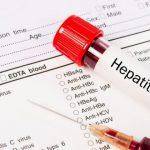 как меняется билирубин при гепатите