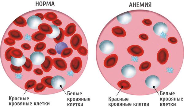 причины низкого билирубина в крови
