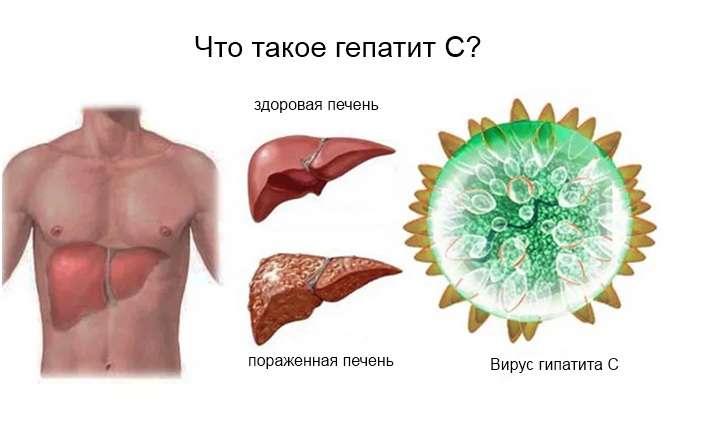 гепатит пример