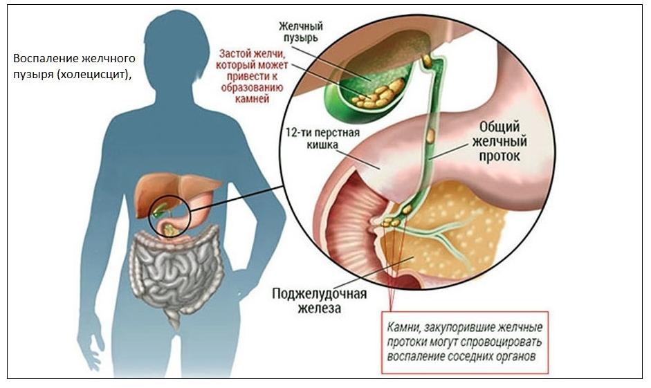 осложнения при синдроме жильбера