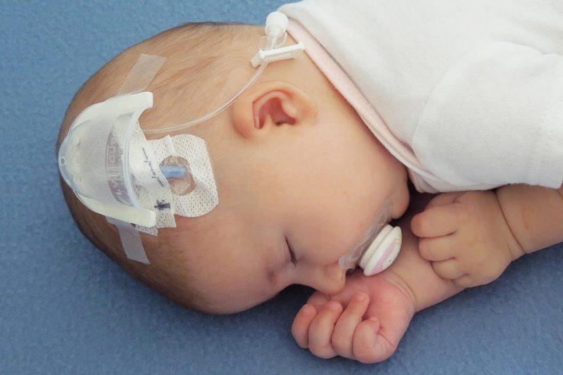 венозный катетер у ребенка