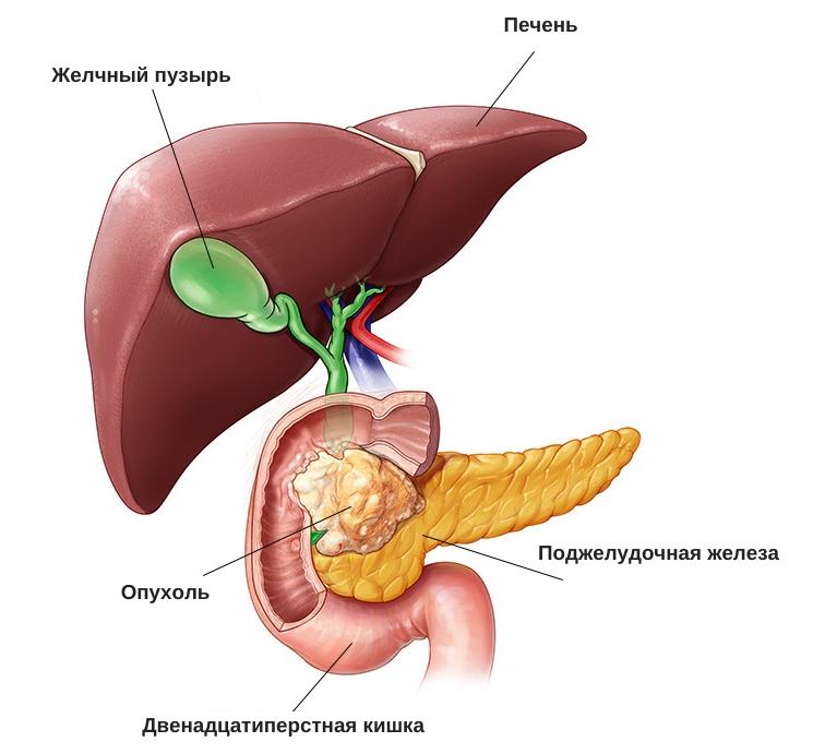 причины высокого билирубина в крови