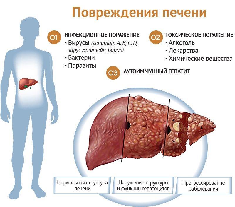 последствия высокого билирубина