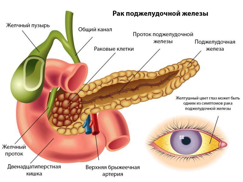 билирубин при раке головки поджелудочной железы