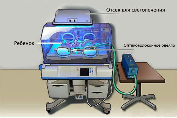 механизм действия фототерапии при лечении физиологической желтухи