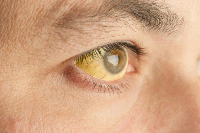 повышенный билирубин при синдроме Жильбера