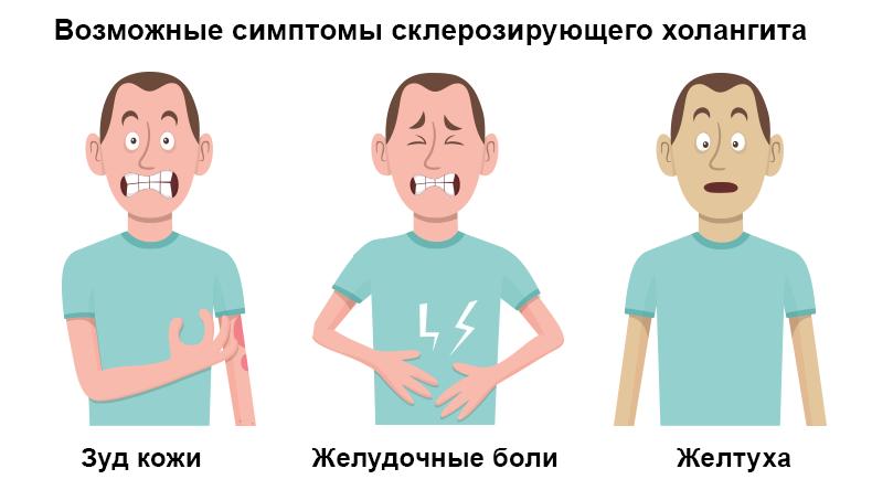 симптомы холангита