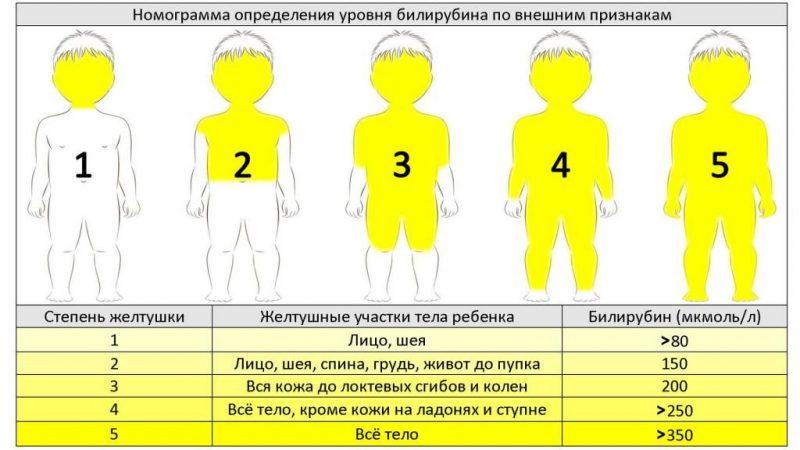 симптомы высокого билирубина по внешним признакам