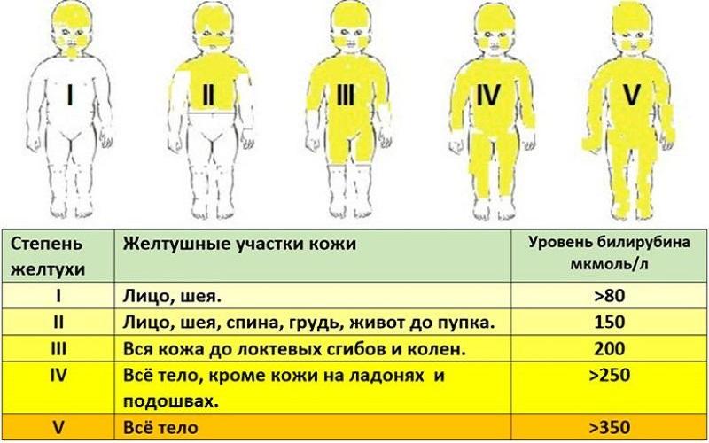 патологическая желтуха новорожденного