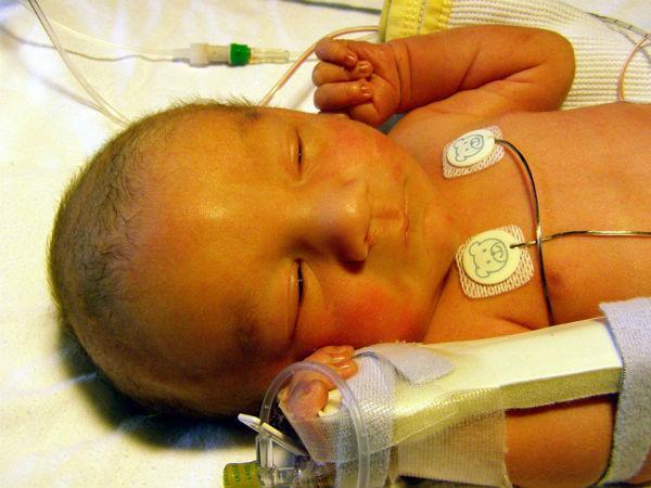 билирубин 280 у новорожденного