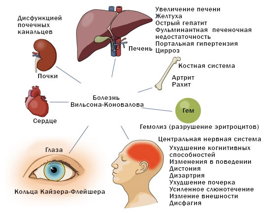 причины гипербилирубинемии у взрослых
