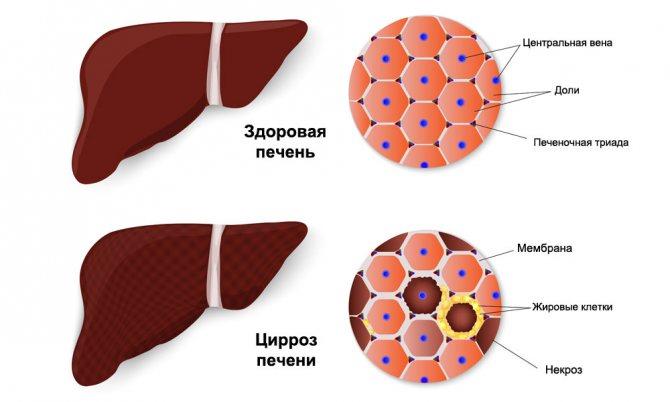 причины повышения тромбоцитов и билирубина