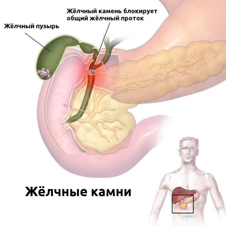 прямая гипербилируьиемия