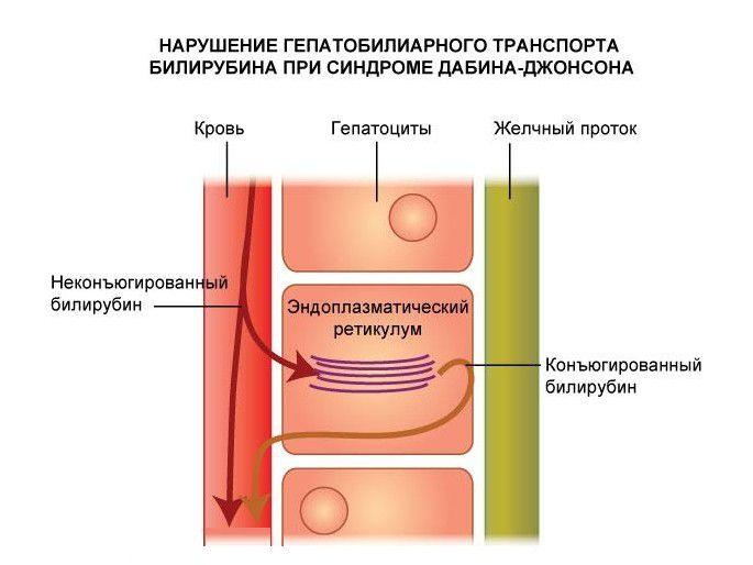 патогенез дабина-джонсона