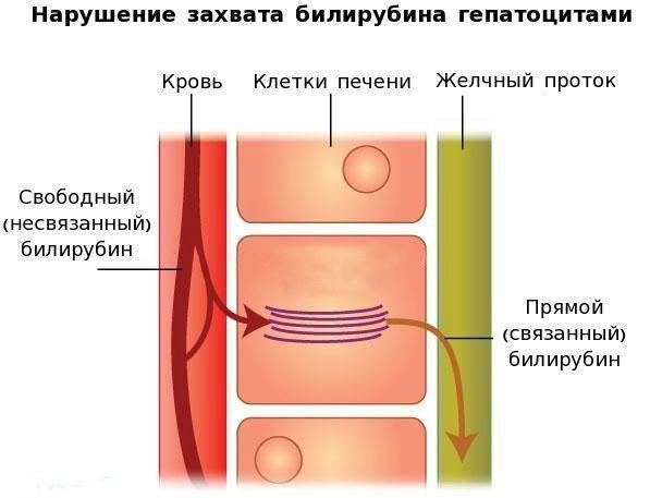 паьлгенез синдрома жильбера