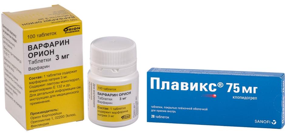 лечение тромбоцитоза