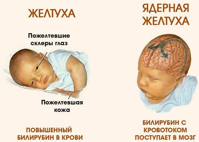 симптомы ядерной желтухи
