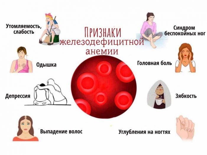 железодефицитная анемия ссимптомы