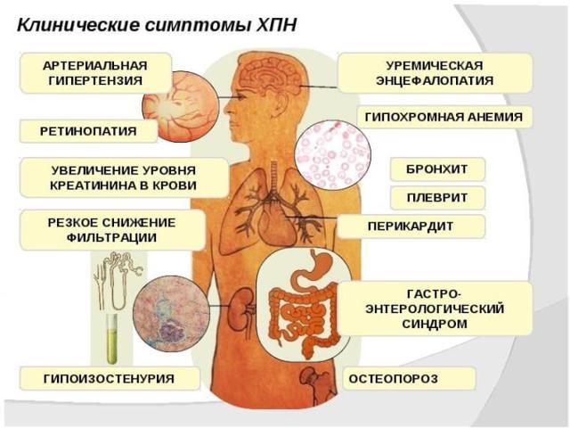 симптомы ХПН